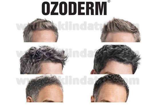 1 ADET OZODERM 4'LÜ SAÇ BAKIM SETİ